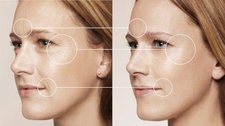 Scapă de riduri și reduce-ți porii! Top măsuri pe care trebuie să le aplici