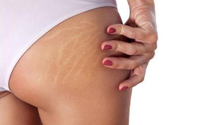 Tratamente naturale minune împotriva vergeturilor! Scapă acum de dungile albe sau roșii de pe piele