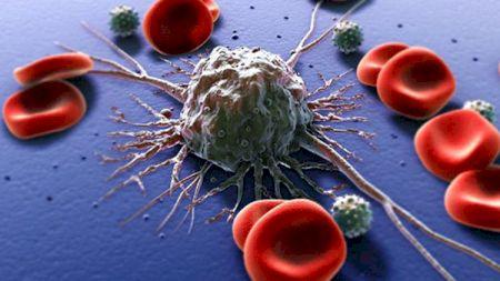 Acest ingredient oprește dezvoltarea tumorilor. Îl ai și tu în cămară! Ce alte beneficii mai are?