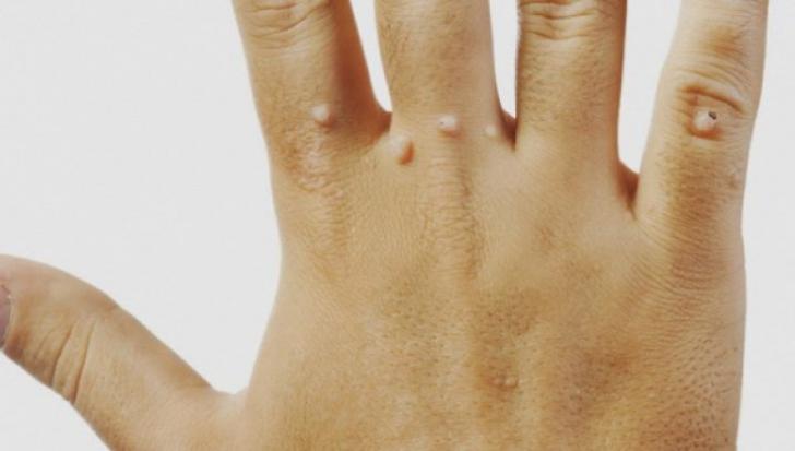 Cel Mai Bun UNGUENT Pentru Durerile Reumatice ネ冓 Articulare   LaTAIFAS