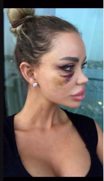 Bianca Drăgușanu, desfigurată